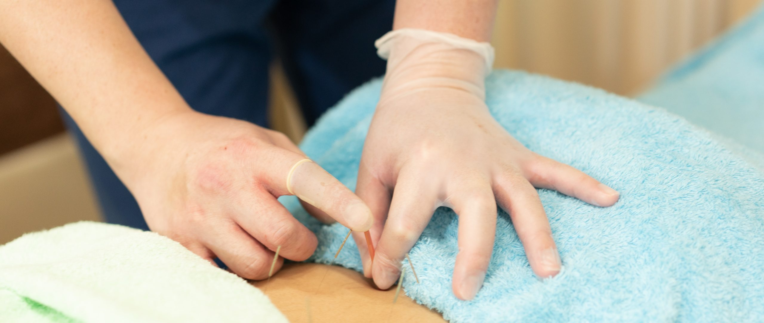 栃木市で鍼灸治療なら、やまとはり・きゅう整骨院